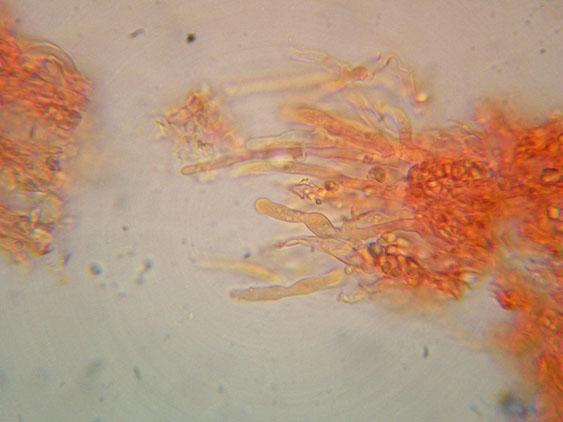 Basidioradulum crustosum