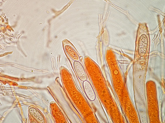 Lachnellula occidentalis (G.G. Hahn & Ayers) Dharne