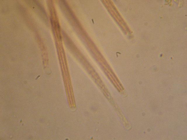 Le Cordyceps