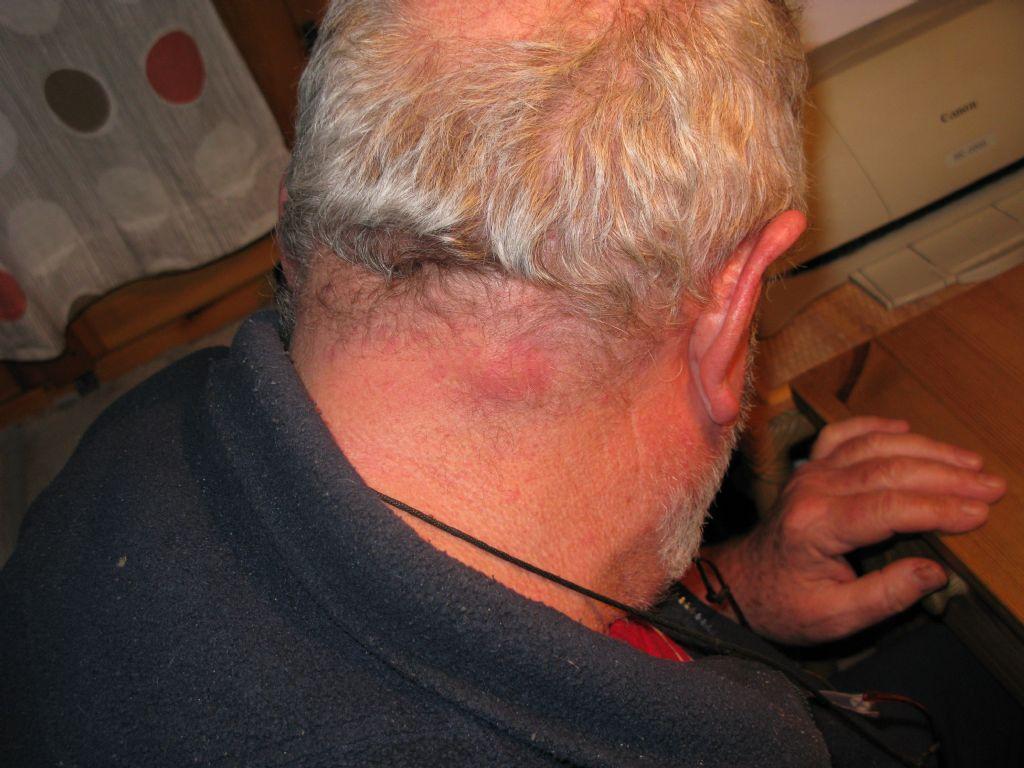 Commozione di un midollo spinale in reparto cervicale