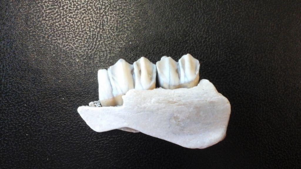 Identificazione dentiera