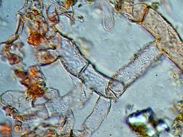 Botryobasidium pruinatum (Bres.) J. Erikss.