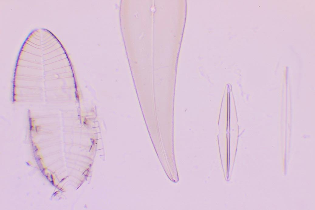 TEST PLATE 8 FORMS Si è rotta la quinta diatomea