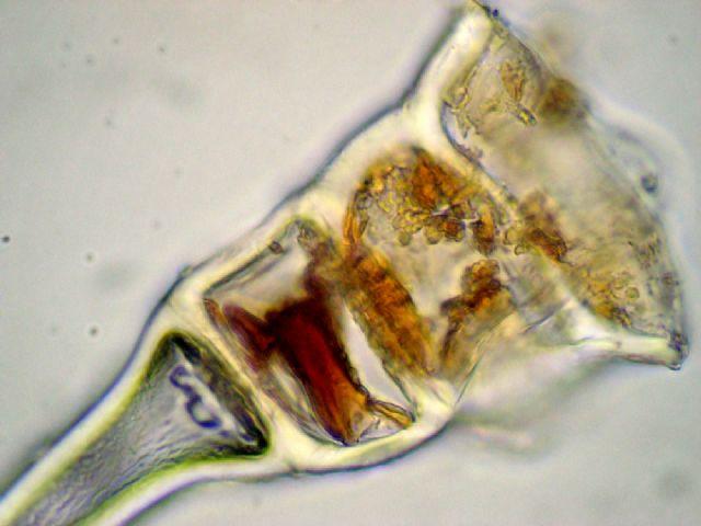 Trattamento di un fungo su pelle di gambe