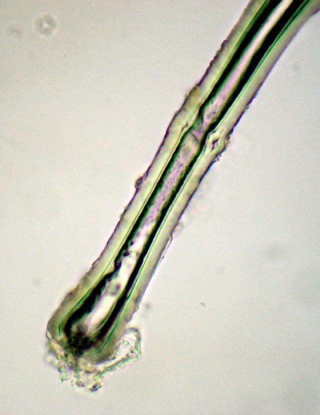 Come ammorbidire la posizione di unghie se un fungo